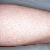 Arm hair removal photo after laser hair removal treatment