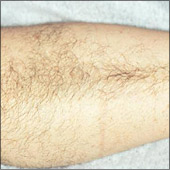 Arm hair removal photo before laser hair removal treatment