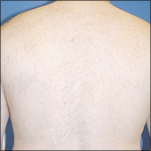 Man back hair removal photo after laser hair treatment
