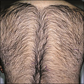Man back hair removal photo example before laser hair treatment