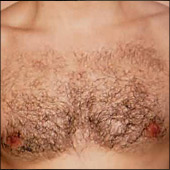 Man chest laser hair removal. Permament chest hair removal for man by Main West Laser Clinic located in Hamilton, Ontario