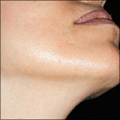 Photo example of hair removal on chin and facial hair. Hamilton, Oakville, Grimsby, and Stoney Creek by Main West Laser Clinic