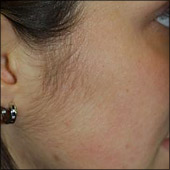 Hamilton laser hair removal for woman facial hair. Photo Gallery photos of before and after treatment examples