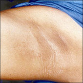 Underarm hair removal example photo after laser hair removal treatment
