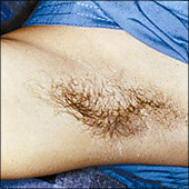 Underarm hair removal example photo before laser hair removal treatment
