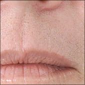 Uperlip photo example of hair removal. Hamilton, Oakville, Grimsby, and Stoney Creek by Main West Laser Clinic